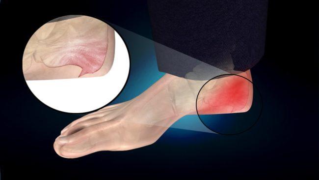 Схематическое изображение шпоры на подошве ноги